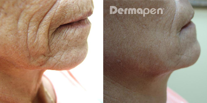 Dermapen Micro-needling before and after