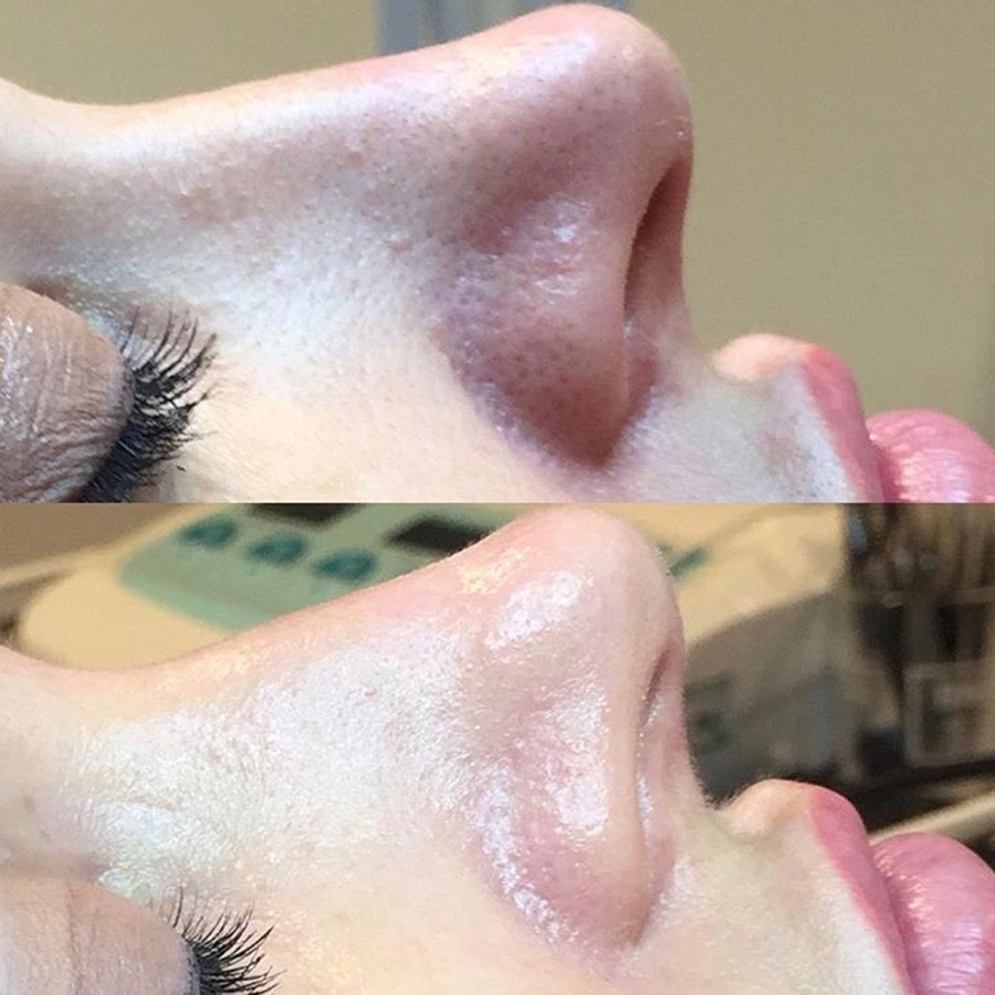 Medical Microdermabrasion Before & After