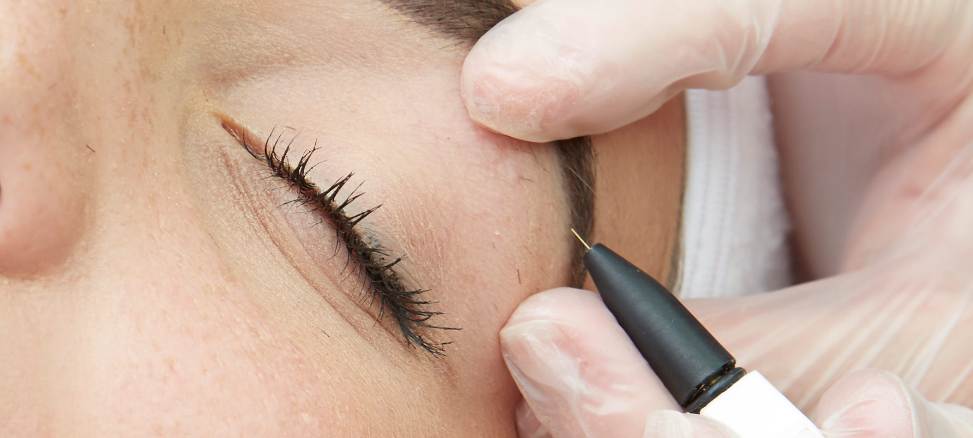 Electrolysis Hair Removal Kensington & Wimbledon
